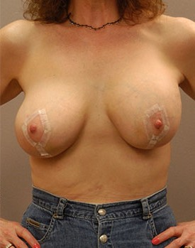Patient pictured after breast implants and a lift in Minneapolis
