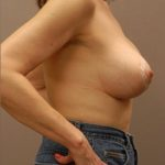 Post-breast augmentation results with treatment from Dr. George Landis