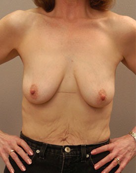 Patients with drooping breasts before receiving breast implants in Minneapolis