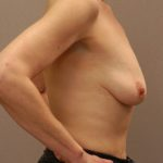 Patient before receiving breast implants to correct loss of volume