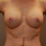 Results of breast augmentation treatment in Minneapolis with Dr. George Landis