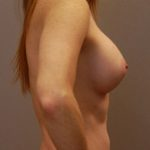 Patient depicted after post-op healing from breast augmentation in Minneapolis