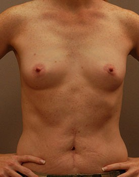 Front view of patient before their breast augmentation procedure