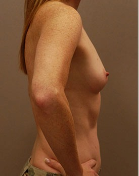 Before plastic surgery with breast implants to increase volume