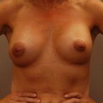 After breast implant surgery to improve breast volume provided by Dr. Landis