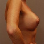 Patient with increased volume and projection after breast implants with Dr. Landis