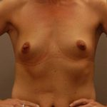 Front view of plastic surgery patient before placement of breast implants