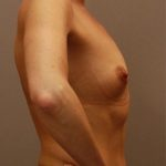 Before augmentation of petite breasts with implants in Minneapolis
