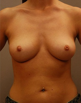 Breast augmentation patient after healing from surgery with implants