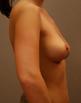 After treatment with breast implants provided by Dr. George Landis