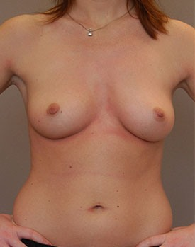 Before breast augmentation surgery to increase breast size