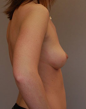 A patient before plastic surgery with breast implants