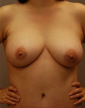 Patient after healing from a mommy makeover with breast augmentation in Minneapolis