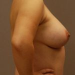 Patient in side view, displaying results from breast augmentation with Dr. Landis