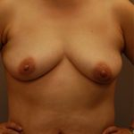 Cosmetic surgery patient before breast augmentation surgery in Minneapolis