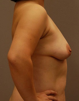 Before breast augmentation surgery in Minneapolis with Dr. George Landis