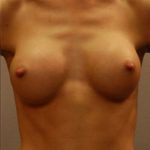 After breast implant placement for a patient with a thin frame in Minneapolis