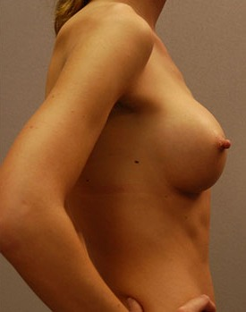 Natural-looking breast implants on a thin patient treated by Dr. Landis