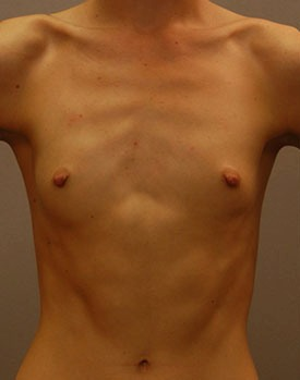 Naturally thin patient before breast augmentation in Minneapolis