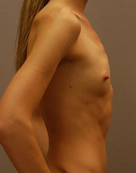 Before implants on a thin patient in Minneapolis