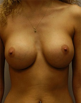 Plastic surgery patient after receiving breast implants in Minneapolis