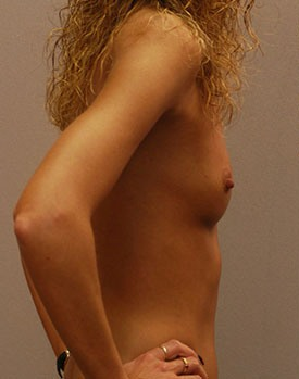 Plastic surgery patient picture before undergoing breast augmentation