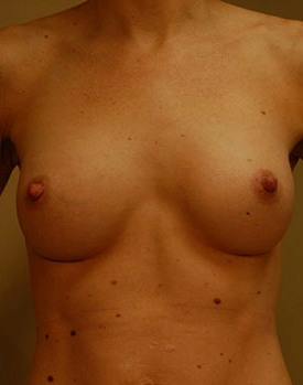 After breast augmentation surgery in Minneapolis with natural-looking implants