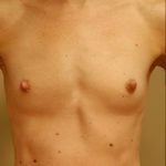 Patient pictured before breast augmentation surgery with Dr. Landis