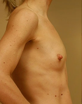 Patient poses in profile before their breast implant surgery