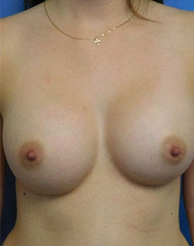 Front-on view of Dr. Landis' patient after breast augmentation surgery