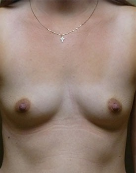 Before picture of a breast augmentation patient, facing forward