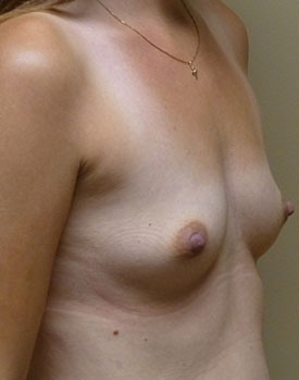 Patient before implant surgery in Minneapolis with Dr. Landis