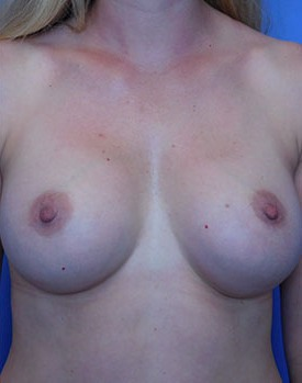 Dr. Landis' breast augmentation patient after surgery, facing forward