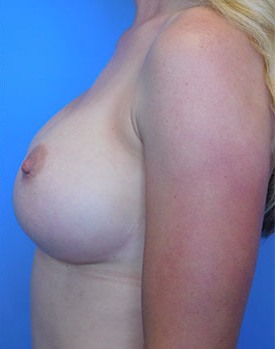 Post-implant procedure side view of Dr. Landis' breast augmentation patient