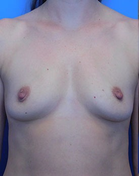 Patient before breast augmentation surgery facing the camera