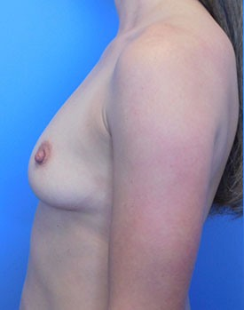 Pre-op breast augmentation patient standing to the side