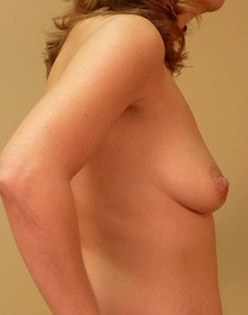 Breast augmentation patient before surgery in side view